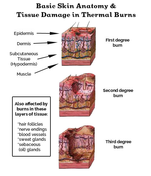 Chemical burns: First aid - Mayo Clinic